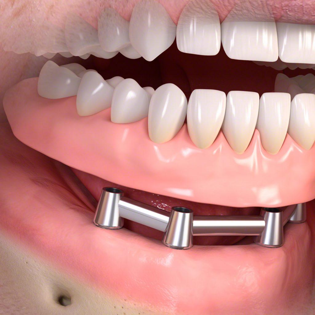 Stéges implantációs fogsor